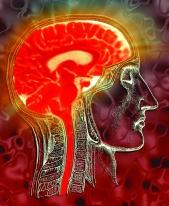 Hot brain PET pic